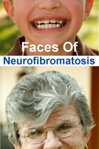 neurofibromatosis information